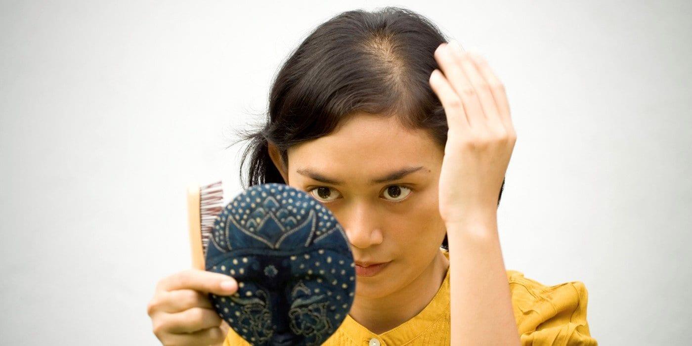 Hair loss in teenagers